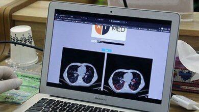 Photo of تشخیص کرونا با هوش مصنوعی در ایران